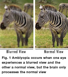 Amblyopia / Lazy Eye Diagnosis