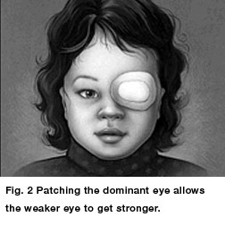 Amblyopia Eye Patching Treatment