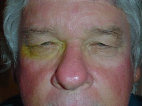 Swollen Eyelid Treatment