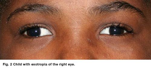 Exotropia Strabismus Eye Disorder