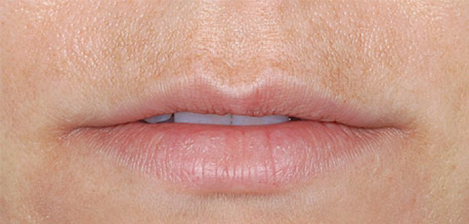 Thin Lip Treatment
