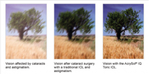 Toric Intraocular Lens (IOL)